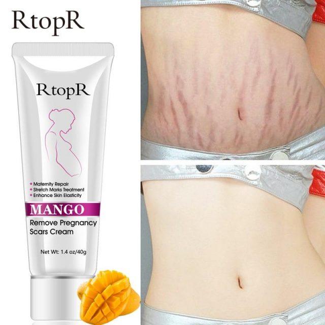 Organic Pregnancy Scars,  Acne,  and Stretch mark Removal Cream